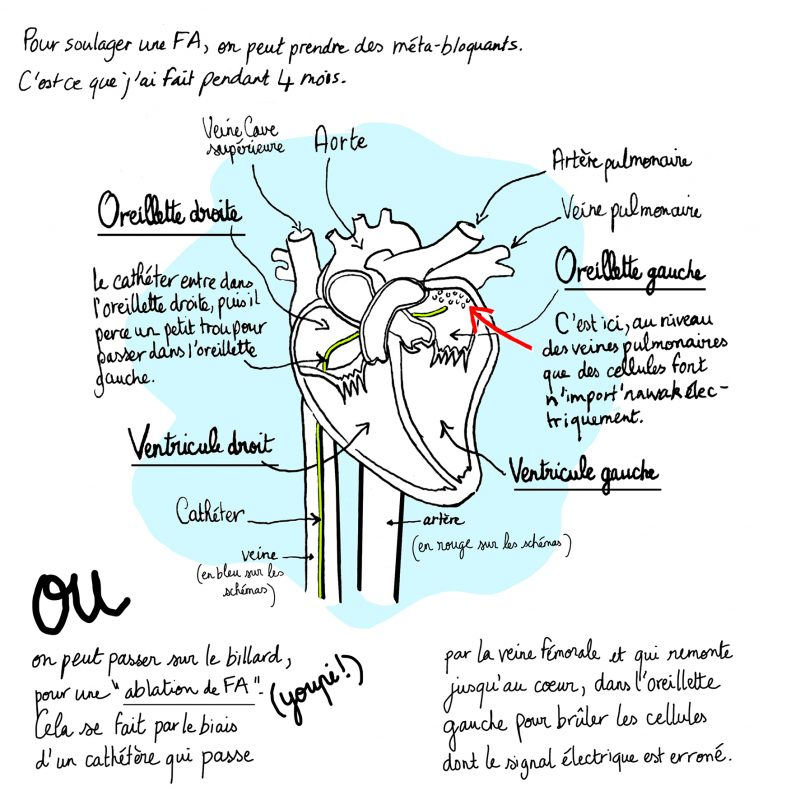 fibrillation auriculaire, ablation fa, illustration julie blaquié, clinique saint augustin
